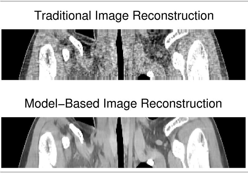 For a summary of how model-based image reconstruction methods lead to improved image quality and/or lower X-ray doses, see: http://web.eecs.umich.edu/~fessler/re