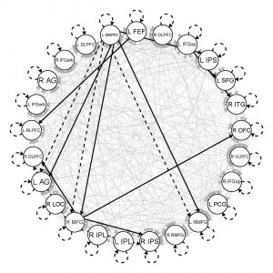 A network map showing the directed connections among 25 brain regions of interest in the resting state frontoparietal network for an individual; data were acquired via functional magnetic resonance imaging. Black lines depict connections common across individuals in the sample, gray lines depict connections specific to this individual, solid lines depict contemporaneous connections (occurring in the same volume), and dashed lines depict lagged connections (occurring between volumes).